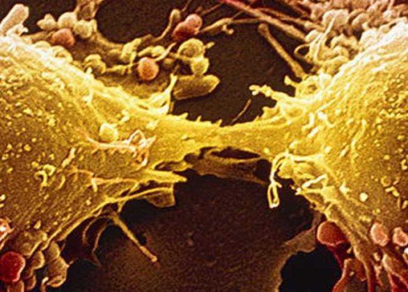 Dez coisas bizarras que você precisa saber sobre o câncer.
